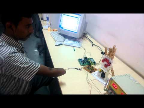 Real time bionic arm control and interfaced with amputee Implemented by MSRUAS