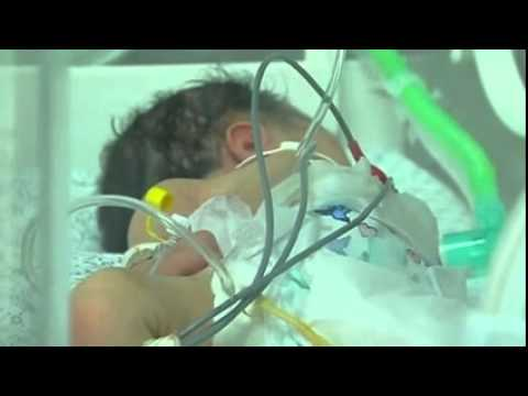 baby delivered from dying mother   (Palestinian)  7/28/14