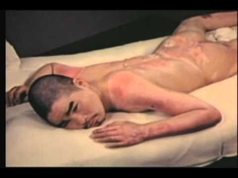 Suppressed US Military Film on the Medical Effects of the US Bombing of Hiroshima and Nagasaki