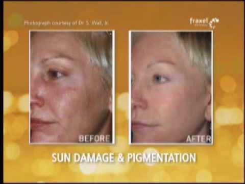 Permalink to best acne scar treatment sydney