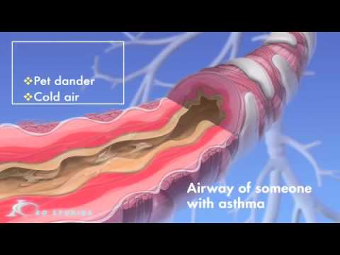 Asthma Medical Animation