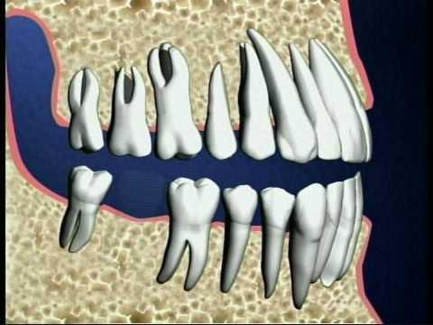Single Tooth Implant -cWuUkgjB9aI