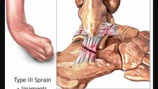 anatomi & fisiologi (broken ankle).wmv