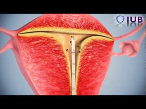 New Intrauterine Device (IUD) Female Contraceptive