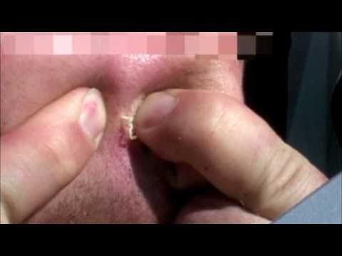 Huge Blackhead gets popped