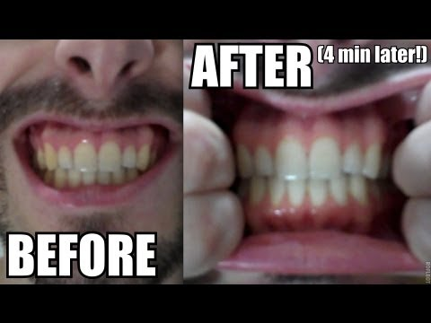 NATURAL TEETH WHITENING AT HOME... WITH TURMERIC?! #383