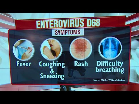 Child respiratory (virus) rapidly sweeping across country   9/15/14