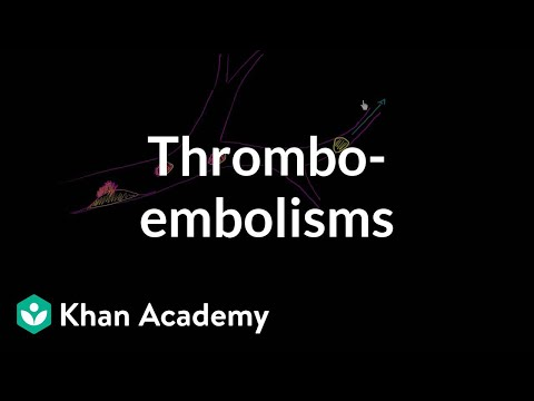 Thrombo-emboli and Thromboembolisms
