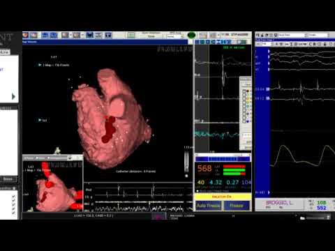 Prof. CARLO PAPPONE ablazione fibrillazione atriale con CARTO RMT e DynaCT