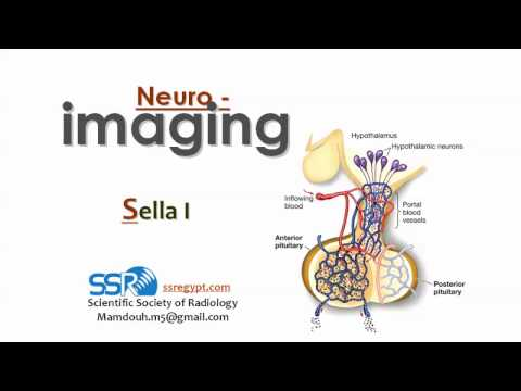 Imaging of Sella (I) - Prof Dr. Mamdouh Mahfouz (In Arabic)