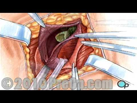 Education Hernia Repair Inguinal (Open) PreOp® Patient Surgery
