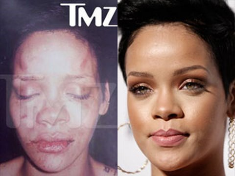 RIHANNA ABUSE PHOTO REACTION