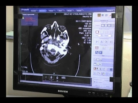 В выксунской ЦРБ начал работать компьютерный томограф