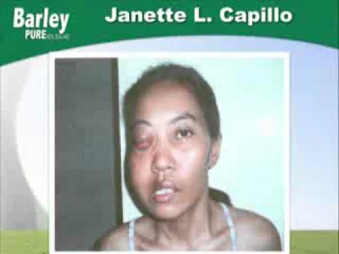 Janette Capillo Cancer and Pure Barley (Testimonials)
