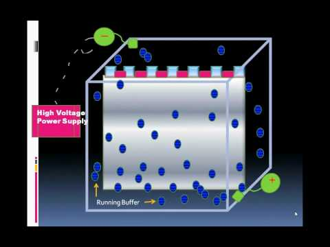 Introduction To Serum Protein Electrophoresis.wmv