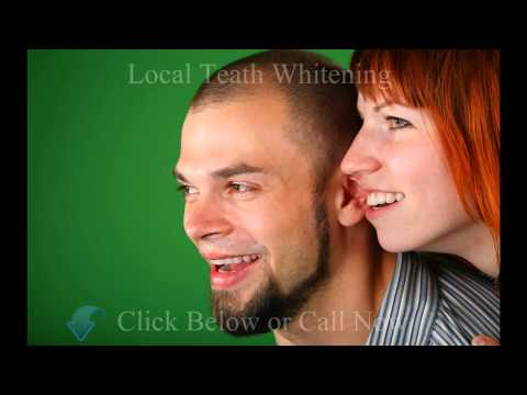 Best Teeth Whitening Vancouver  - Call (877)879-1139