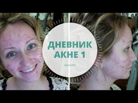Дневник акне 1. Начало лечения и уход за кожей / Acne Update + Acne Skincare