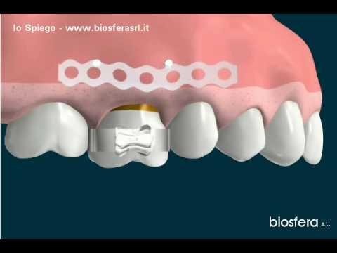 Intrusione di molare superiore con impianti