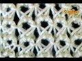 Como Tejer Punto Peruano #2 Broomstick Lace (87)
