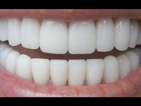 video : How To Have Natural White Teeth in 3 minutes ( Works 100% )