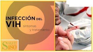 Infección por VIH, síntomas y características