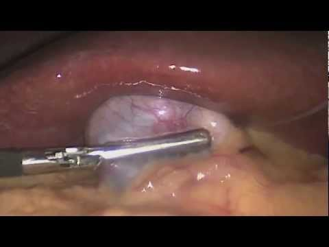 Laparoscopy Surgery Full Video For Gall Stones (HD) - Gallbladder Symptoms!