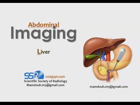 Hepatic imaging  - Prof. Dr. Mamdouh Mahfouz (In Arabic)