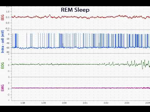 Slow-Wave Sleep -- REM sleep -- Wake transitions
