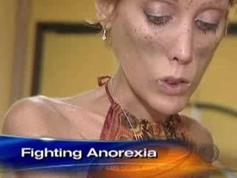 Anorexia-s Childhood Roots (CBS News)