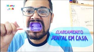 Youtube Como Retirar Violeta Genciana Das Maos Masglee Com