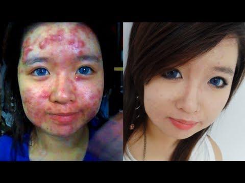 Los preparados homeopáticos al tratamiento del acné