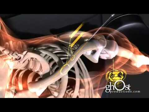 Medical Animation - Heal: ghOst Production-s 2009 Orthopedic Demo Reel