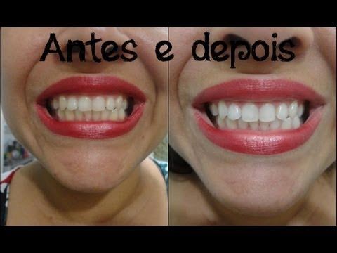 Clareando os dentes com as fitas clareadoras whitestrips Oral B.