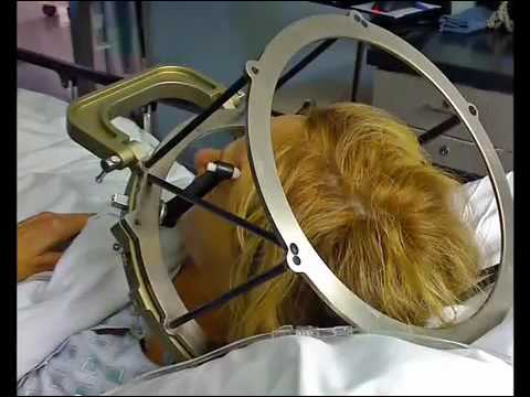 Deep Brain Stimulation Surgery  - Treatment of symptoms of Parkinson's Disease Symptoms