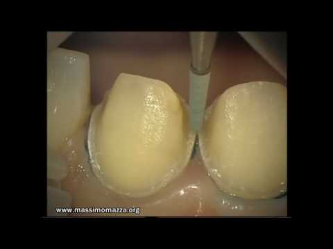 Microscope: Aesthetic veneers (final preparation) 2/4
