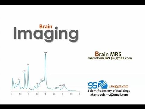 MR Spectroscopy in the Brain - Prof. Dr. Mamdouh Mahfouz(mans2017)