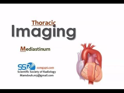 Imaging of Mediastinal lesions - Prof Dr. Mamdouh Mahfouz (In Arabic)