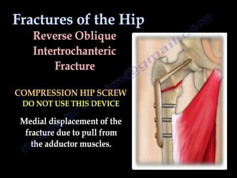 Fractures Of The Hip and its fixation  - Everything You Need To Know - Dr. Nabil Ebraheim