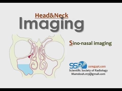 Paranasal Sinus imaging quiz cases - Prof Dr. Mamdouh Mahfouz (In Arabic)