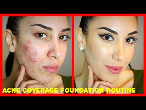 Acne Coverage Foundation Routine (PRE-ACCUTANE) Drugstore Products!!! - UCZQKcZ7upoLIZYCeB9_THvA