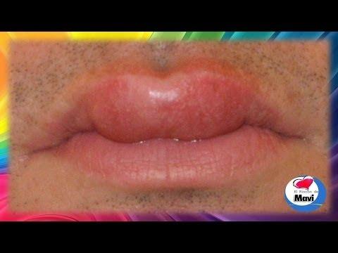 youtube como desinflamar un labio hinchado remedios caseros para