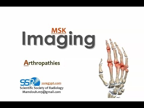 Imaging of Polyarticular arthropathy IV - Prof Dr. Mamdouh Mahfouz (In Arabic)