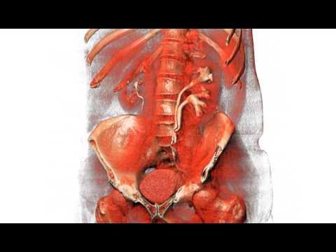 Duplicated Left Ureter