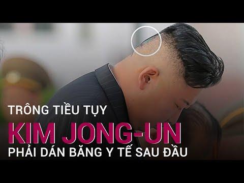 Hình ảnh ông Kim Jong-un dán băng y tế sau đầu làm dấy lên nghi vấn về sức khoẻ | VTC Now