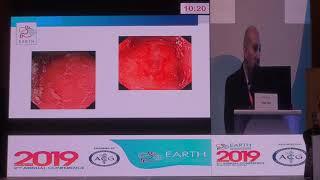 #EARTH2019  Prof. Tamer Elbaz #Practice guidelines for managing obscure GI bleeding