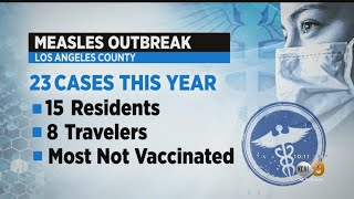 Another Case Of Measles Reported In Los Angeles County