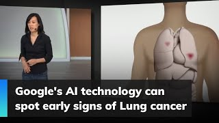 Google's AI technology can spot early signs of Lung cancer