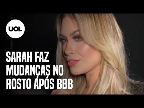 Ex-BBB Sarah mostra resultado de harmonização facial e mudança no nariz