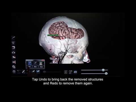 How to Use the Dissection Tool and Freehand Sculpt Tool in Anatomage Table 5.0