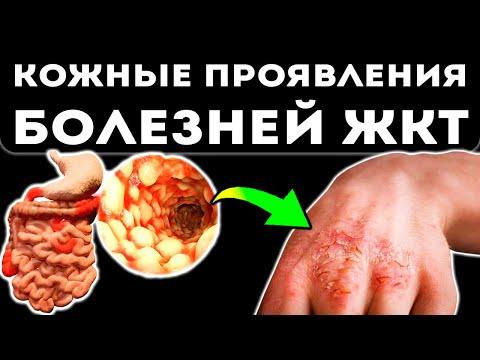 Экзема уйдет за неделю! Гладкая кожа без зуда, трещин и корочек. Улучшить качество кожи поможет…